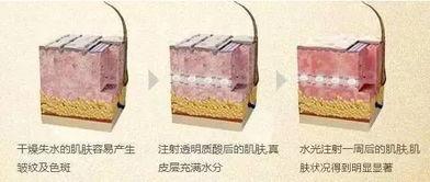 上海沃美医疗水光针
