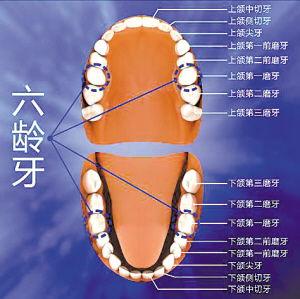 青春期牙龈炎发生于青春期的少年,主要表现是前牙唇侧的 -中小学生...