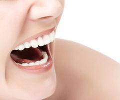 整形牙齿多少钱,现在牙齿矫正还需要带牙套吗