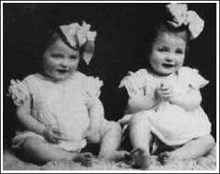 纳粹医生用孪生姐妹做人体实验