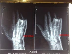 畸骨-第5掌骨骨折畸形愈合40天后成功整复并愈 新闻中心