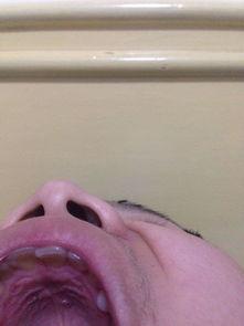 口腔上颚长了个小疙瘩,半年前发现的,然后去医院看了下,医生...