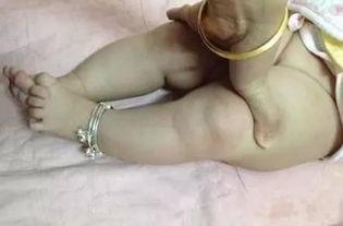 防止宝宝的罗圈腿