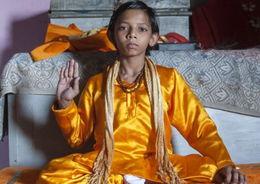 印度少年长18厘米长尾被尊 猴神 为健康或将切除尾巴