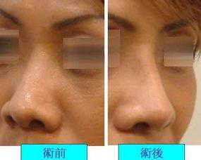 使额头或眉骨与鼻子的角度比例和谐