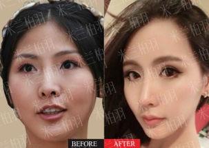 鼻子整形那种技术恢复比较快