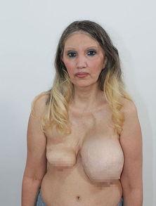 黛比超恐怖的大小胸-美国前AV女优隆胸梦碎 挺 大小胸 15年