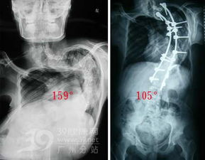 实拍 脊柱侧弯矫正手术全过程