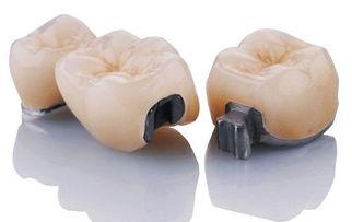 ...瓷牙优劣的7个标准