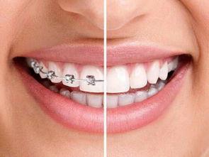 琼海牙齿矫正新方法